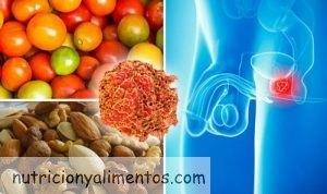 Cáncer de Próstata y Alimentación